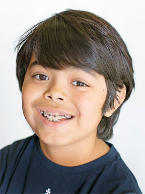 does_your_child_need_braces