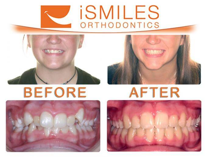 Irvine Orthodontist Patient 1