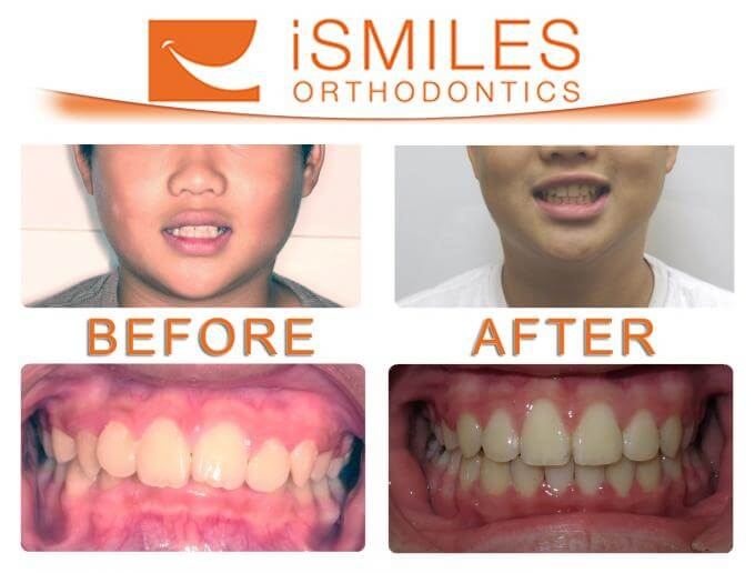 Irvine Orthodontist Patient 2