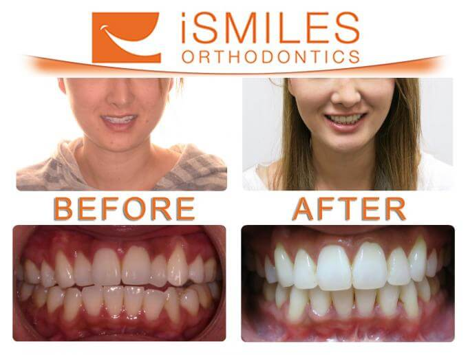 Irvine Orthodontist Patient 3