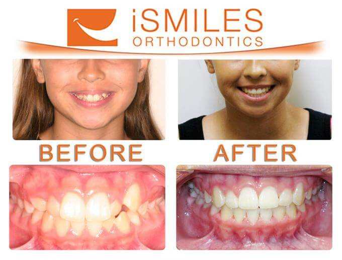 Irvine Orthodontist Patient 4