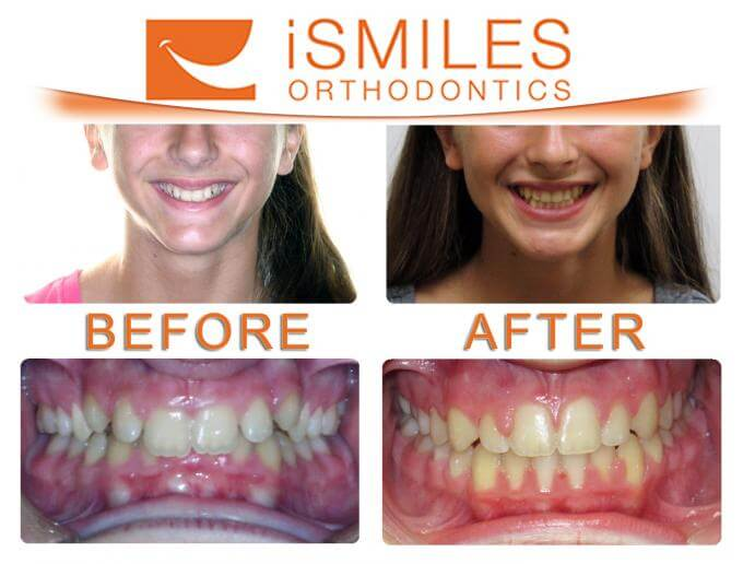 Irvine Orthodontist Patient 5