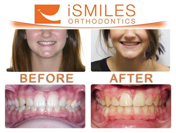iSmiles Orthodontics Patient 1
