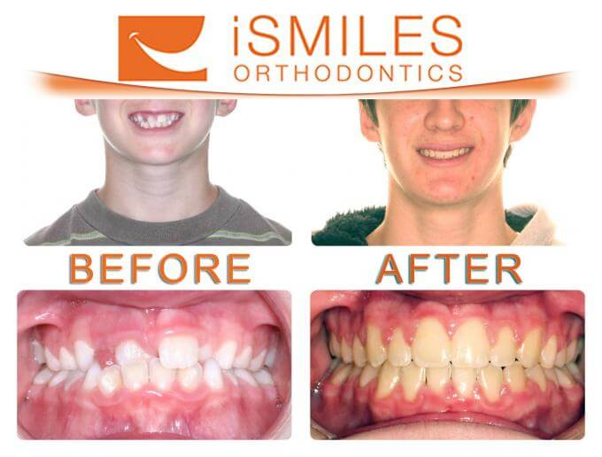 iSmiles Orthodontics Patient 3