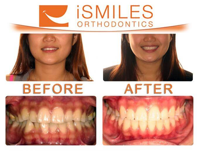 iSmiles Orthodontics Patient 5