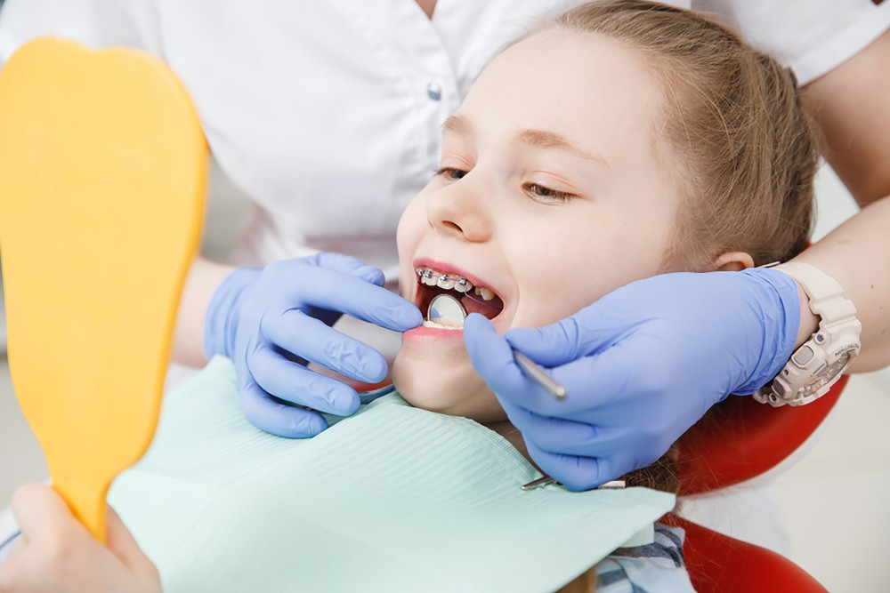 a few things parents must know before their child's braces treatment