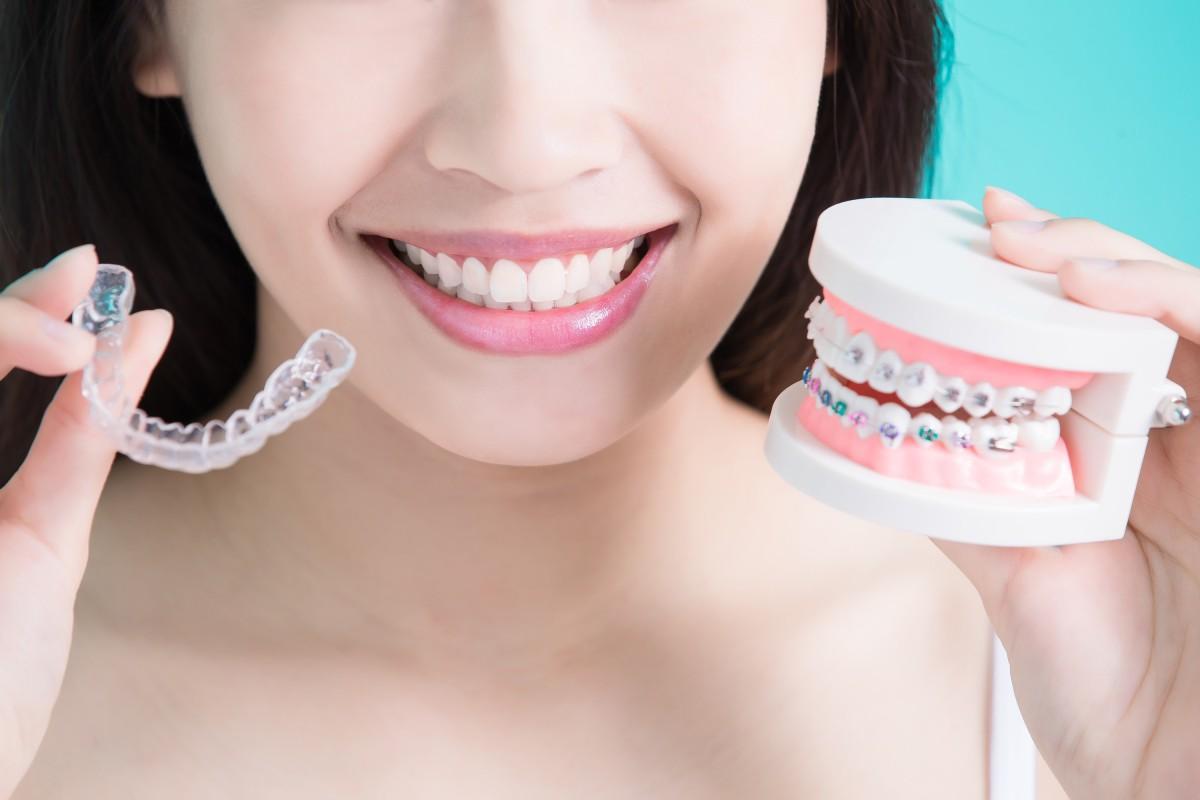 traditional braces vs invisalign